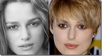 keira-knightley-before-after plastic surgery