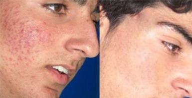 como quitar el acne rapido