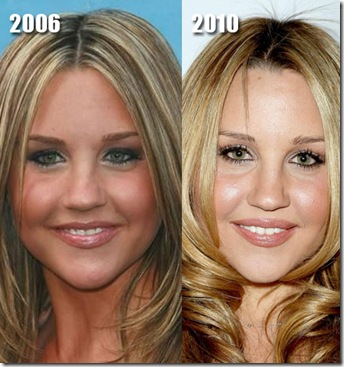 amanda bynes plastic surgery before after