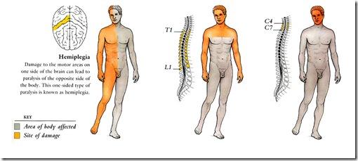 Paralysis - Beament Hebert Nicholson LLP - Personal Injury Law