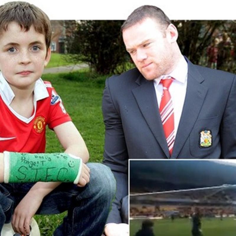 Budak patah tangan terkena bola sepakan Rooney