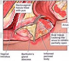 fistula rektovaginal