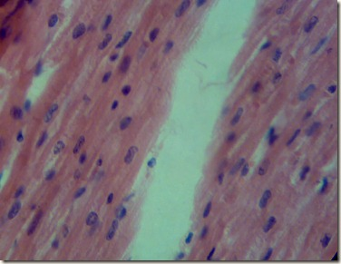 under microscope Cardiac muscle appears as