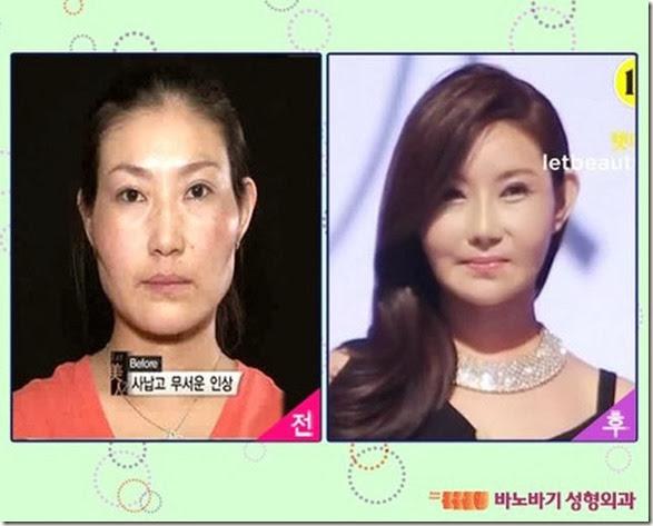 korean-plastic-surgery-14