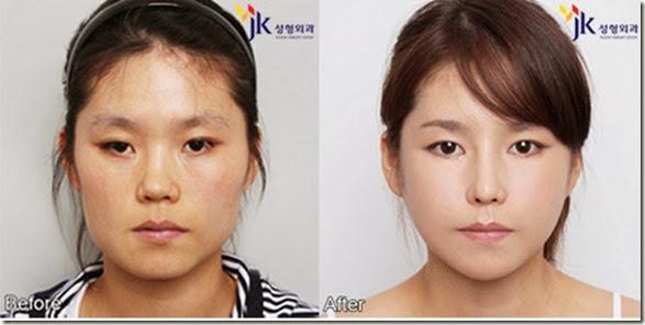 korean-plastic-surgery-13