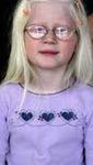 Pengertian albino