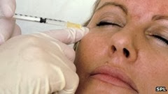 _70075836_botox_facelift_injection-spl-1