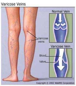 دوالي القدم .. اسباب وعلاج