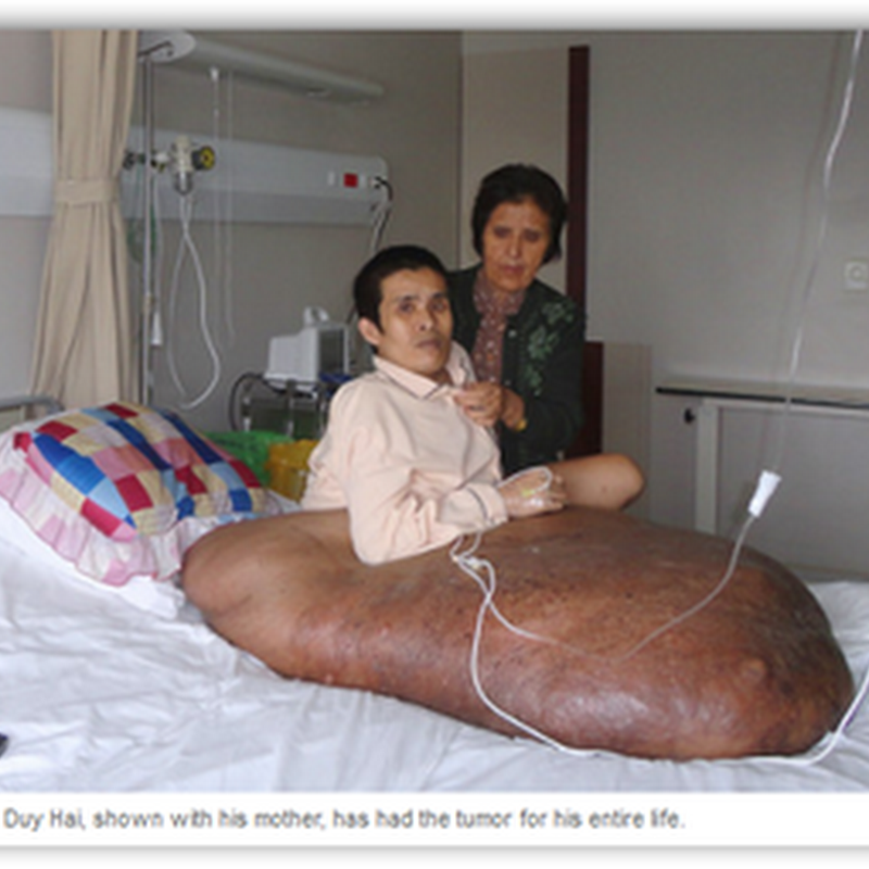 Man has 180 Pound Tumor Removed That Consumed His Right Leg and Was Twice His Weight–This One Is So Ugly!