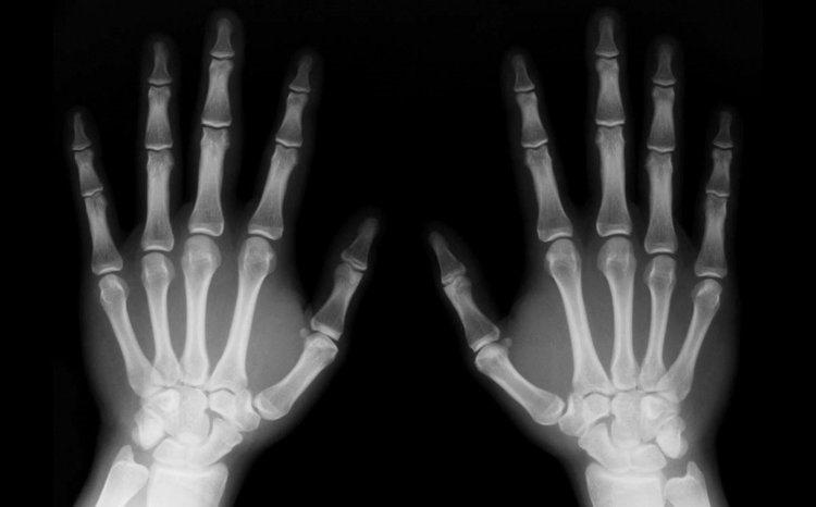 radiografia - Rayos X