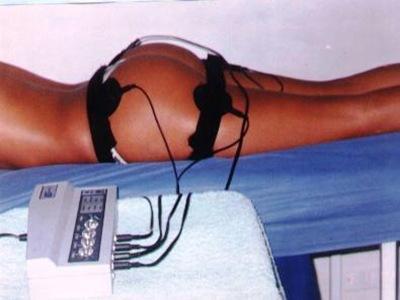La-electro-estimulación