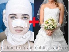 bridal-plasty-300x224