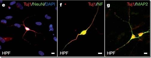 neuronas-diferenciadas