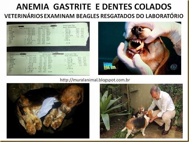 ANEMIA  GASTRITE  E DENTES COLADOS