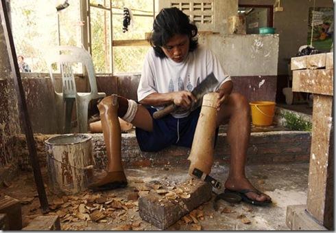 THAILAND-MAE SOT-MAE TAO HOSPITAL FORM BURMESE REFUGEES