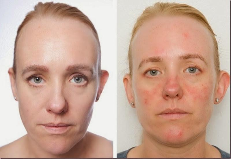 acontece, cuidados com a pele, limpeza de pele profunda, limpeza facial, o que acontece?, produtos para limpeza de pele,,