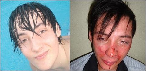 André Barbosa antes e depois da agressão