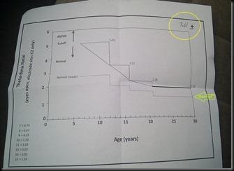 Theta graph