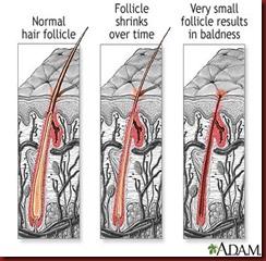 A healthy hair follicle to a bad hair follicle