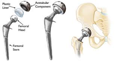 artificial hip