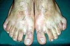pnephilins-seis-dedos