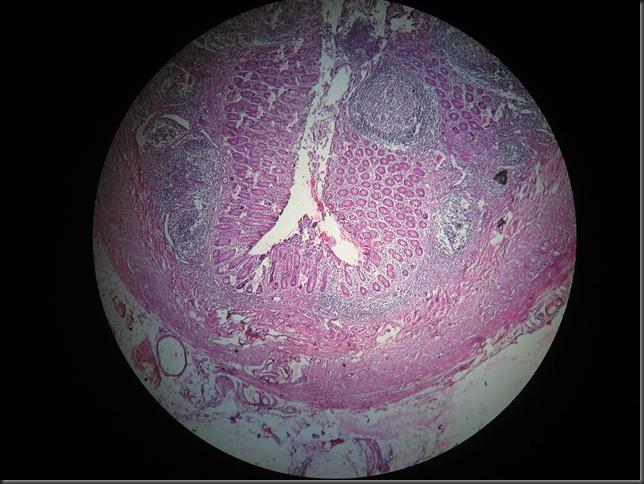 Acute Appendicitis high resolution histology slide tsnaps