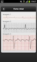 Screenshot of ECG