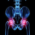 Prevent Arthritis icon