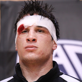 2nd Place Hurts by Justin Quinn - Sports & Fitness Other Sports ( ncaa, ouch, wrestling, college, sports, blood )