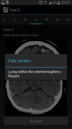 Radiological Anatomy For FRCR1 - screenshot