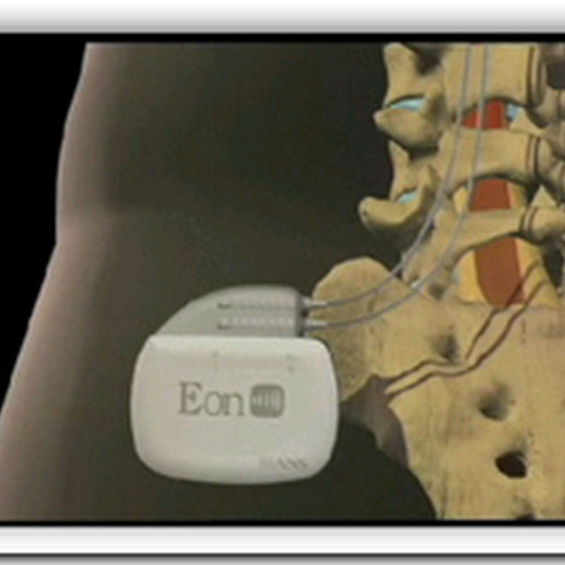 Device proves blessing to chronic pain sufferers