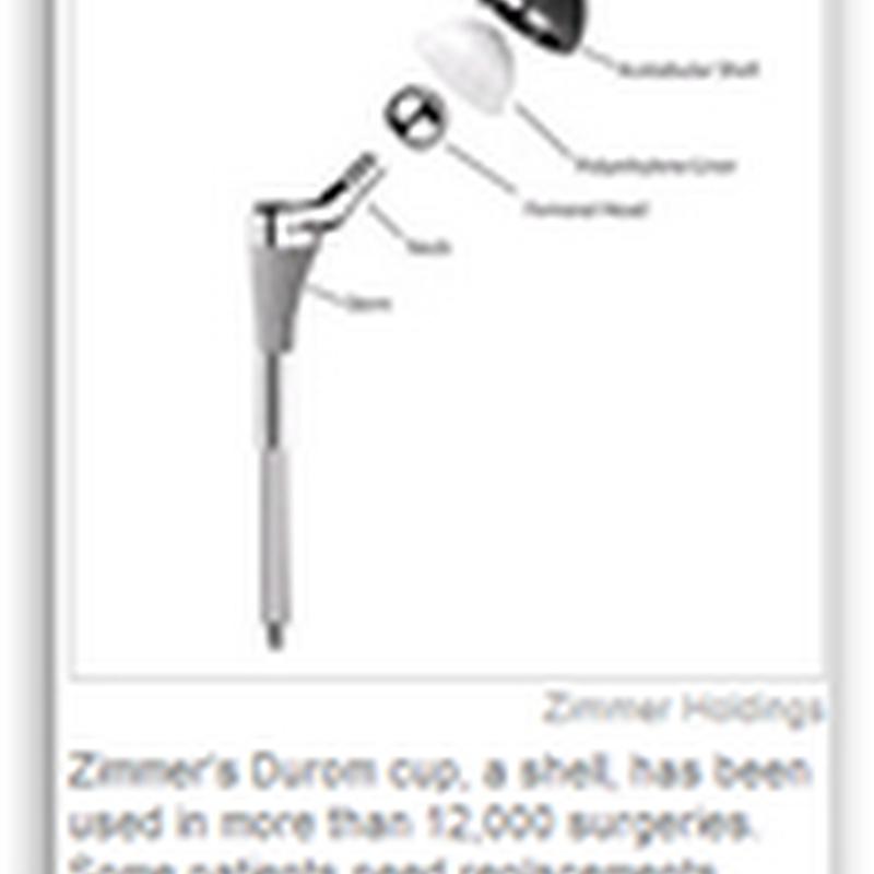 Complaints Undermine Hip Device – Zimmer Hip
