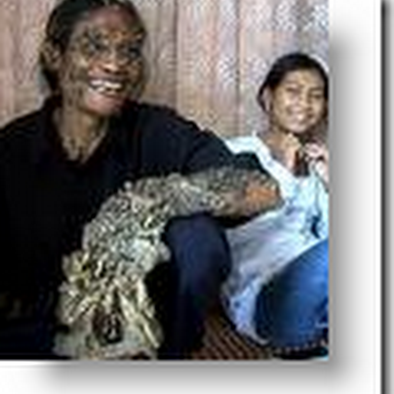 'Tree Man' To Head Home After Treatment