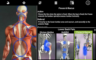 Screenshot of Muscle Trigger Point Anatomy