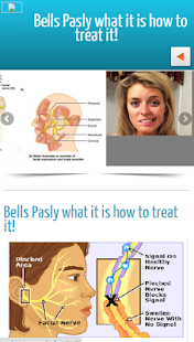 Bells Palsy - screenshot