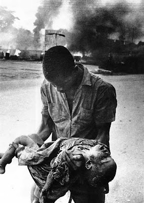 BNW-Carlisle-Umunna-Nigeria-Biafra-War-child-casualty-3.jpg