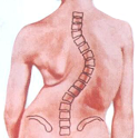 Korea University Scoliosis icon