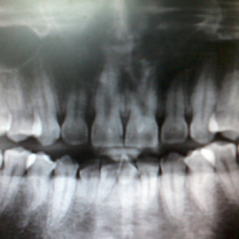 raw of a row of tooth by Rasydan Aluwi - Instagram & Mobile Android ( raw, tooth, x-ray, teeth,  )