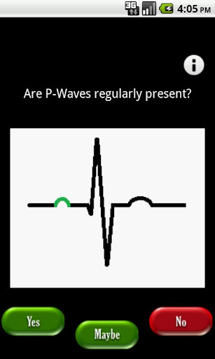 Electrocardiography - Wikipedia, the free encyclopedia