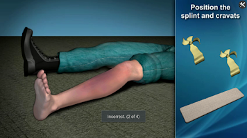Screenshot of Medrills: Fracture