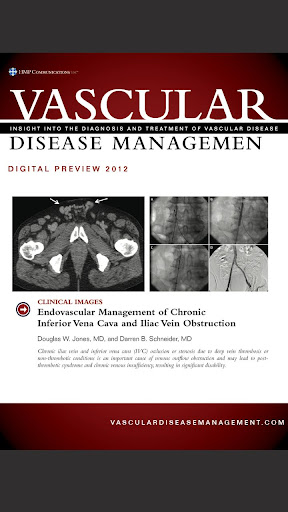 Vascular Disease Management