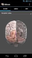 Screenshot of 3D Brain