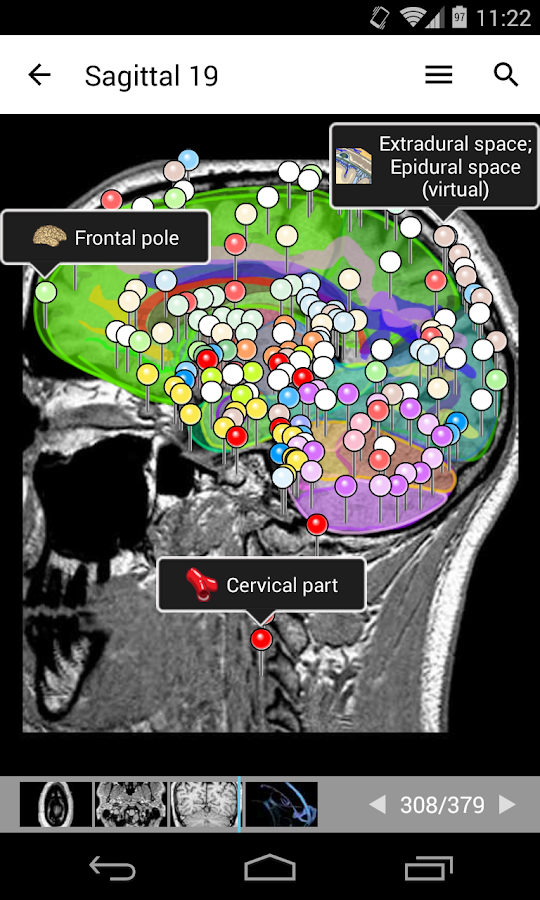 IMAIOS e-Anatomy Screenshot 2