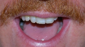 Screenshot of Keith Lemon's Mouthboard
