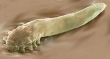 Follicle mites,; sometimes referred to as - eyelash mite or face mite - Demodex follicularum