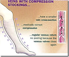 compression_stocking