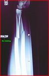 brokenarm