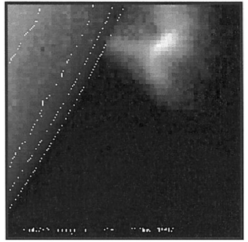 SXT images of the X9 event of 2 November 1992 as the sum of the raw white light and soft X-ray images at about 03:18 UT. The contours show the location of the limb. The flare occurred about 10° behind the limb and was the largest of the Yohkoh eta. By Hugh Hudson. This figure is available in full color at http://www.mrw.interscience. wiley.com/esst.