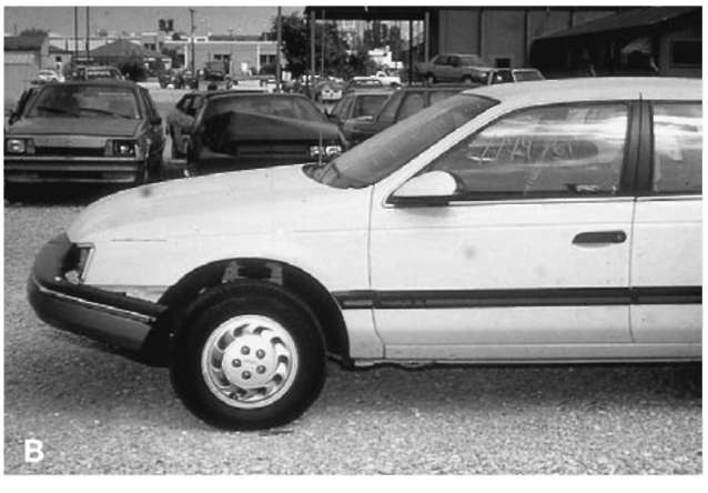 (A) and (B) A 1991 Ford Taurus was involved in a very minor glancing collision between the front bumper and a guardrail. There was no underlying frame, fender or structural damage.