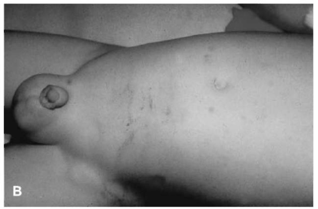 (B) Examination of the patient's abdomen reveals a horizontally-oriented contusion consistent with a lap belt.